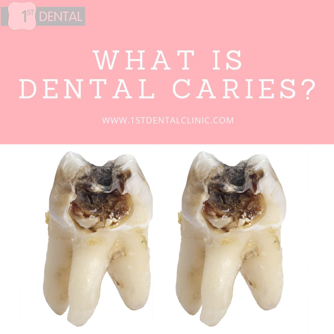 WHAT IS DENTAL CARIES ?