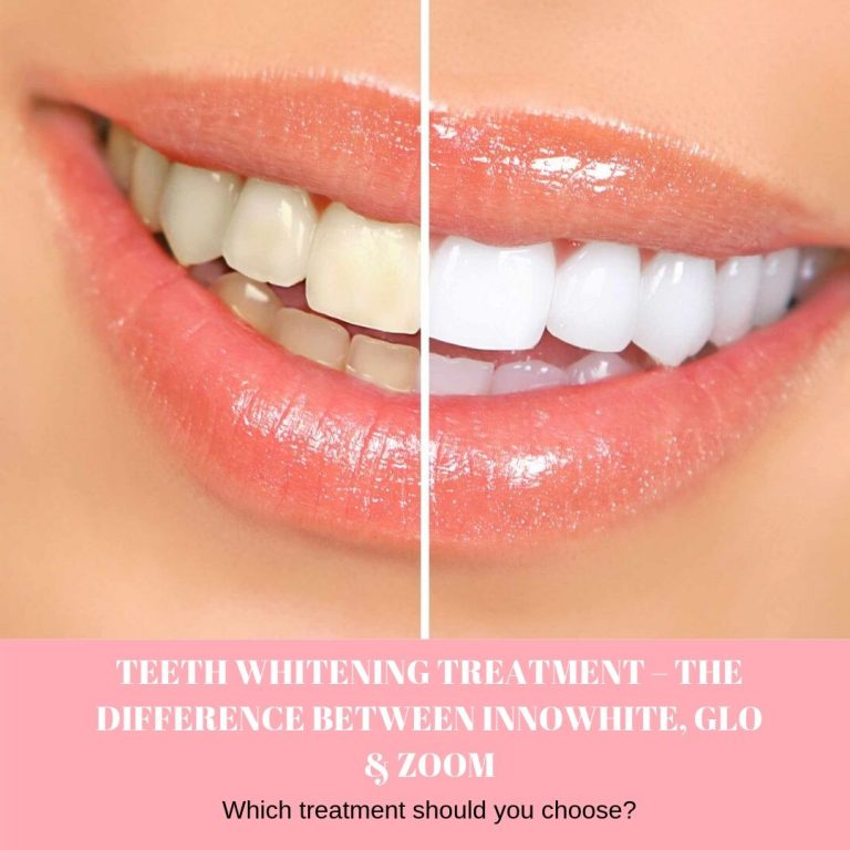 TEETH WHITENING TREATMENT – THE DIFFERENCE BETWEEN INNOWHITE, GLO & ZOOM