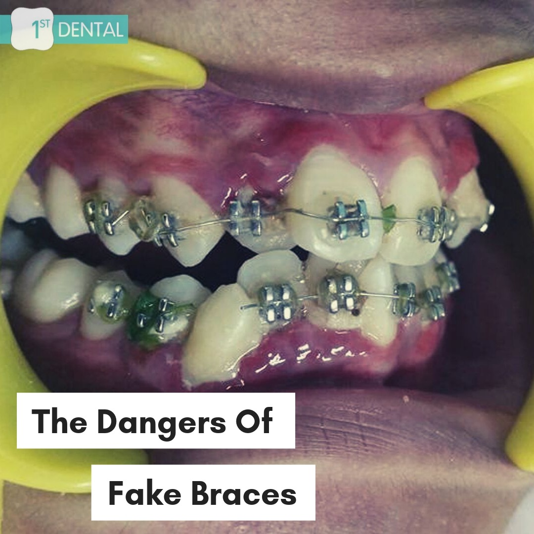 The Dangers of Fake Braces