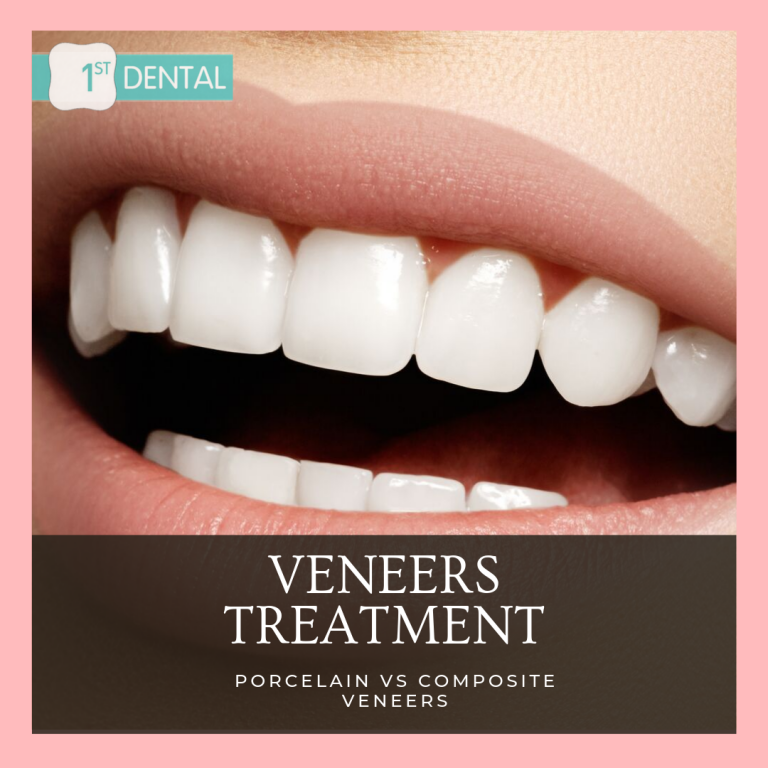PORCELAIN & COMPOSITE VENEERS
