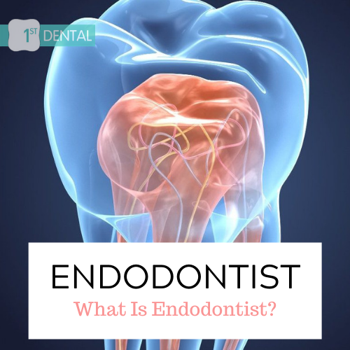 WHAT IS ENDODONTIST?