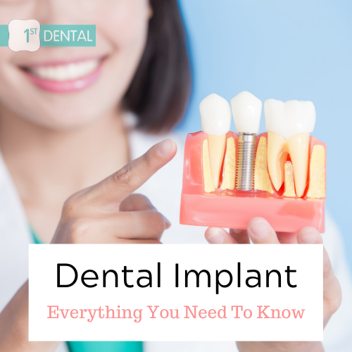 Everything You Need To Know About Dental Implant
