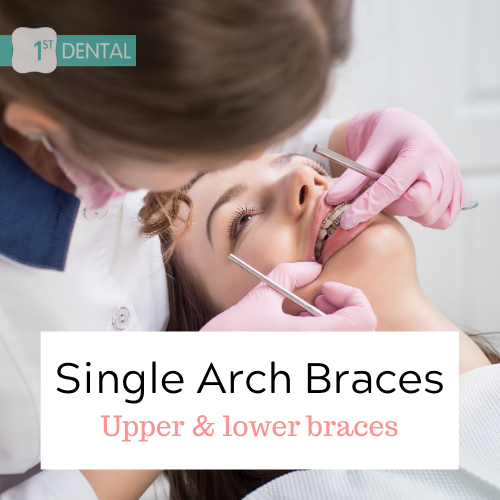 Single Arch Braces – Upper Teeth Braces & Lower Teeth Braces