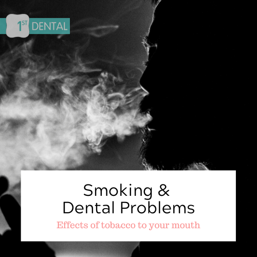 SMOKING & DENTAL PROBLEMS