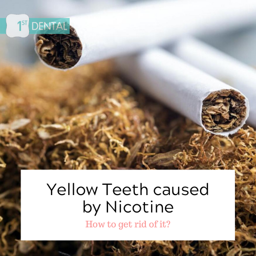 How to get rid of yellow teeth caused by nicotine?